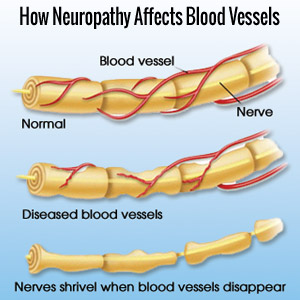 Nerve Pain Neuropathy