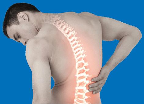 Fiona Medical Back Pain Image